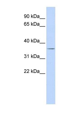 Western blot - VSX1 antibody (ab85400)