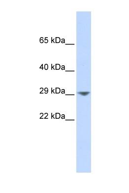 Western blot - KCNN2 antibody (ab85401)