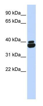 Western blot - OTP antibody (ab85405)