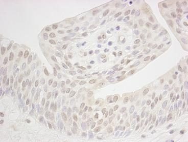 Immunohistochemistry (Formalin/PFA-fixed paraffin-embedded sections) - XPB antibody (ab85408)