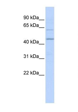 Western blot - RNF13 antibody (ab85421)