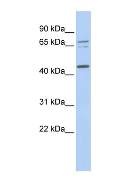Western blot - QTRT1 antibody (ab85424)