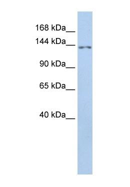 Western blot - TMEM132B antibody (ab85425)