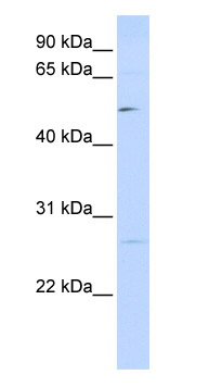 Western blot - PPM1E antibody (ab85426)