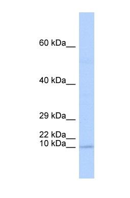 Western blot - TAL2 antibody (ab85432)