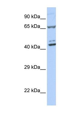 Western blot - ZNF324 antibody (ab85437)