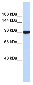 Western blot - Advillin antibody (ab85440)