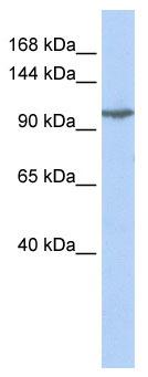 Western blot - GRIK5 antibody (ab85441)