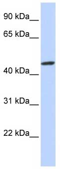 Western blot - ZNF239 antibody (ab85443)
