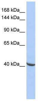 Western blot - POGZ antibody (ab85444)