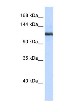 Western blot - cPLA2 beta antibody (ab85448)