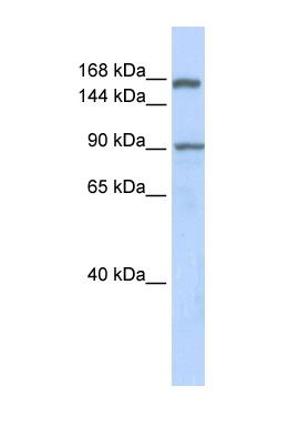 Western blot - AFF2 antibody (ab85450)