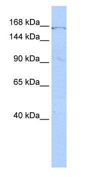 Western blot - ZNF236 antibody (ab85453)