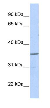 Western blot - ZNF688 antibody (ab85456)