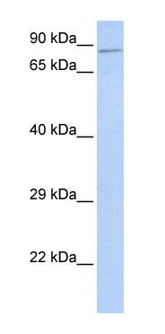 Western blot - ZNF226 antibody (ab85457)