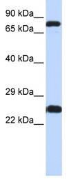 Western blot - Zinc finger protein 799 antibody (ab85469)