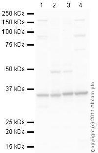 Western blot - Anti-Lactate Dehydrogenase Isoenzyme V antibody (ab85472)
