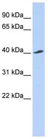 Western blot - KIR5.1 antibody (ab85473)