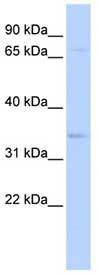 Western blot - CHRFAM7A antibody (ab85475)