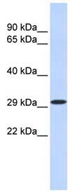 Western blot - KLF14 antibody (ab85476)