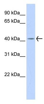 Western blot - Dehydrodolichyl Diphosphate Synthase  antibody (ab85503)