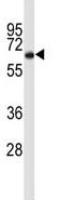 Western blot - Cortactin antibody (ab85507)
