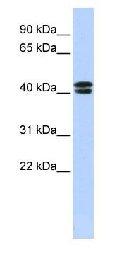 Western blot - CACNB3 antibody (ab85510)