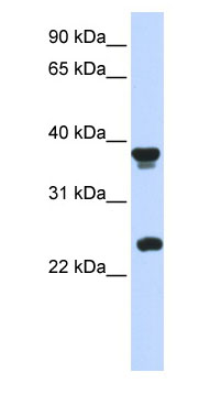 Western blot - MATH1/HATH1 antibody (ab85513)