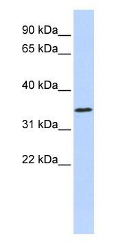 Western blot - ZNF660 antibody (ab85516)