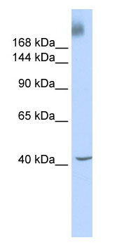 Western blot - KAT4 / TBP Associated Factor 1 antibody (ab85533)