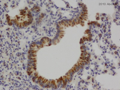 Immunohistochemistry (Formalin/PFA-fixed paraffin-embedded sections) - Heparanase 1 antibody (ab85543)