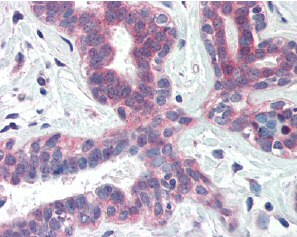 Immunohistochemistry (Formalin/PFA-fixed paraffin-embedded sections) - XBP1 antibody (ab85546)
