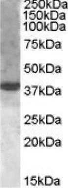 Western blot - XBP1 antibody (ab85546)