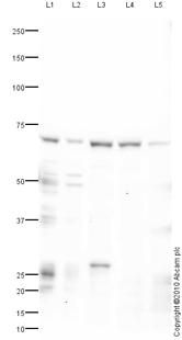 Western blot - PMP70 antibody (ab85550)
