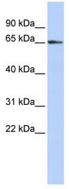 Western blot - ZFP3 antibody (ab85558)