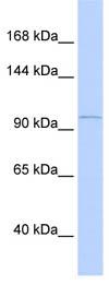 Western blot - PCDH8 antibody (ab85561)