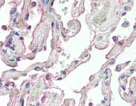Immunohistochemistry (Formalin/PFA-fixed paraffin-embedded sections) - SCTR antibody (ab85565)
