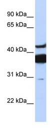 Western blot - LASS2 antibody (ab85567)