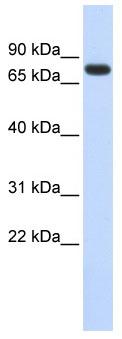 Western blot - ANKRD13B antibody (ab85577)