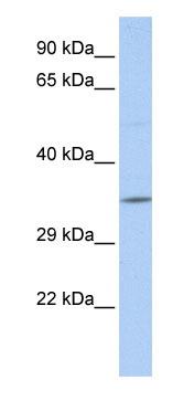 Western blot - SCAND2 antibody (ab85585)