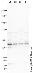 Western blot - LRPAP1 antibody (ab85591)