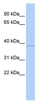 Western blot - ZNF75A antibody (ab85593)