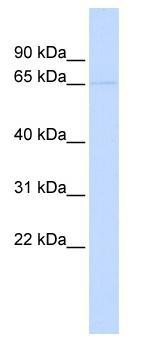 Western blot - KCNV2 antibody (ab85595)
