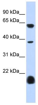 Western blot - 5HT3E antibody (ab85596)