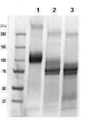 SDS-PAGE - TrkC – Fc Chimera (ab85599)