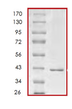 SDS-PAGE - p18 INK4c protein (Tagged) (ab85605)