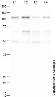 Western blot - Rb antibody (ab85607)