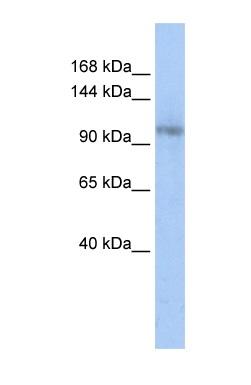 Western blot - CA150 antibody (ab85630)