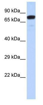 Western blot - ZNF221 antibody (ab85631)