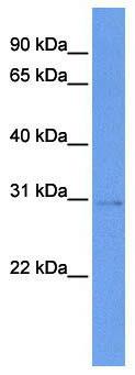 Western blot - STK16 antibody (ab85638)